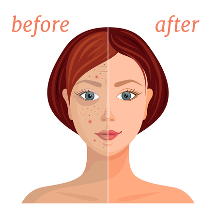 Illustrazione per Banner with the image of a woman's face before and after the application of cosmetics. Comparison of problematic dull skin and healthy, clean. Vector illustration. - Immagini Royalty Free