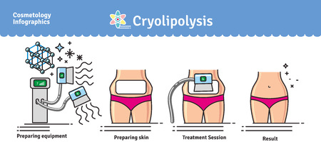 Illustration pour Vector Illustrated set with salon cosmetology Cryolipolysis treatment. Infographics with icons of medical cosmetic procedures for body. - image libre de droit
