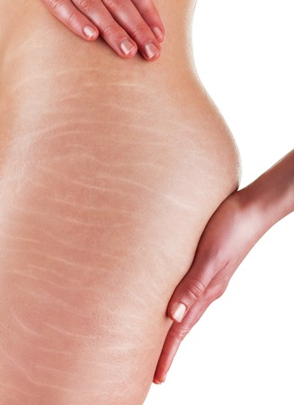 Photo pour A woman is testing the skin on the thigh for the presence of stretch marks and cellulite - image libre de droit