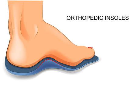 Ilustración de vector illustration of orthopedic insoles for shoes - Imagen libre de derechos