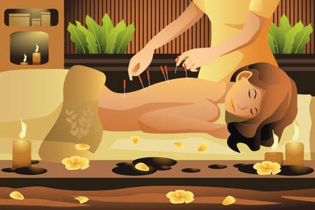 Illustration for A vector illustration of woman lying on massage table getting acupuncture therapy - Royalty Free Image