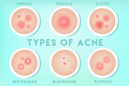 Illustrazione per Acne types: whiteheads, blackheads, pustules, papules, cysts, nodules - Immagini Royalty Free