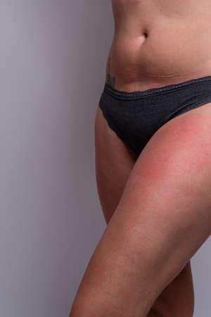 Foto de Close up of woman with sunburn on legs. Displaying one leg. Showing no face. - Imagen libre de derechos