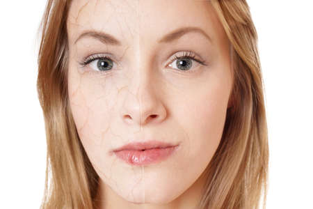 Foto de skin rejuvenation concept. young woman with dry skin texture on half of her face and smooth skin on the other. - Imagen libre de derechos
