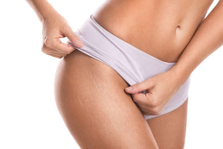 Photo for Close up of female hips with a stretch marks - Royalty Free Image