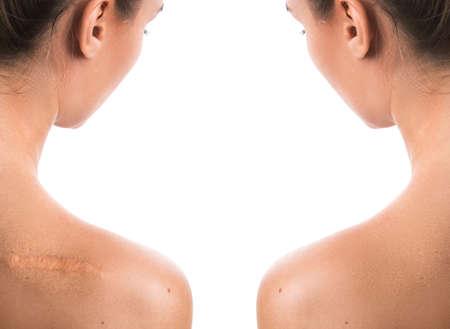 Photo pour Comparision of female shoulder after scar removing procedure - image libre de droit