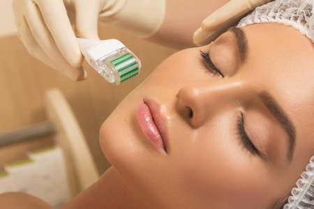 Foto de Beautiful woman in beauty salon during mesotherapy procedure.  Face microneedling treatment with a meso roller. - Imagen libre de derechos