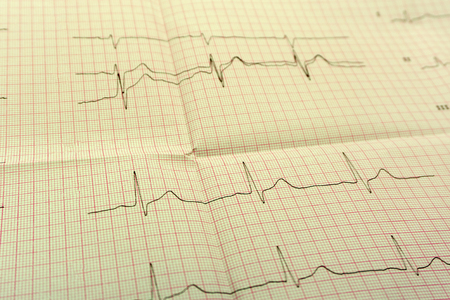 Foto de EGGor ECG paper the ECG Is the result of Stress test and pink heart shape out of pills. The promotion package to check your heart up high or older the concept of people - Imagen libre de derechos