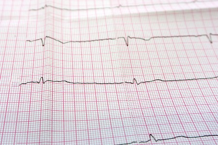Foto de Close up of an electrocardiogram in paper form - Imagen libre de derechos