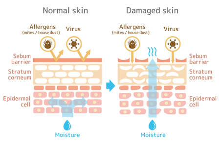 Foto per Sectional view of the skin.Comparison illustration of protection effect between healthy skin and wounded skin. With text. - Immagine Royalty Free