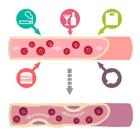 Ilustración de Illustration that healthy blood become muddy blood due to various unhealthy factors, causing arteriosclerosis (No text). - Imagen libre de derechos