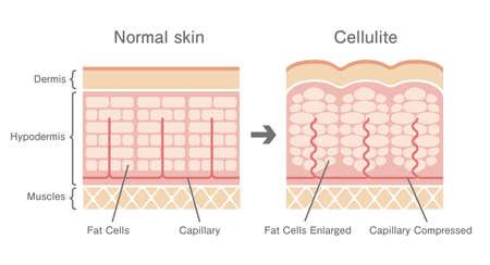 Illustration pour Comparative illustration of normal skin and cellulite's skin - image libre de droit
