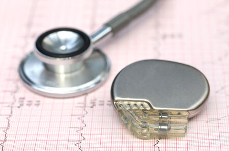 Foto de Close up of electrocardiograph with stethoscope and pacemaker - Imagen libre de derechos