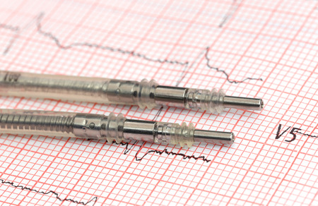 Foto de Close up of Pacemaker leads on electrocardiograph - Imagen libre de derechos