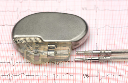 Foto de Close up of pacemaker on electrocardiograph - Imagen libre de derechos