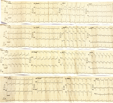 Foto de Electrocardiograph close up image as a background - Imagen libre de derechos