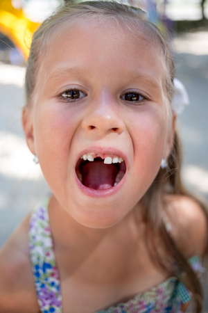 Photo for Closeup portrait of little girl without one tooth - Royalty Free Image