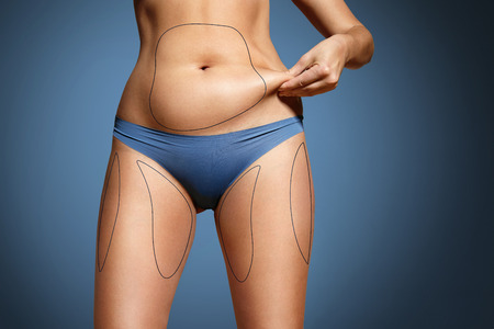 Photo pour woman pinched her fat on body. Body with marked zones for liposuction - image libre de droit