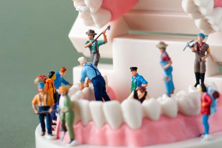 Foto de Model of the teeth - Imagen libre de derechos