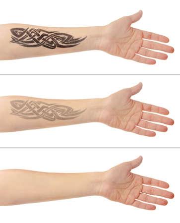Foto de Tattoo on male hand. Laser tattoo removal concept - Imagen libre de derechos