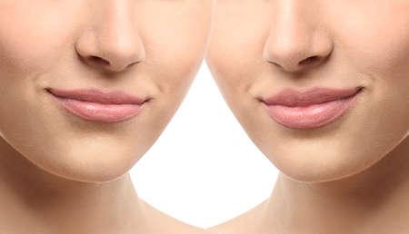Photo pour Woman lips before and after cosmetic procedure. Plastic surgery concept. - image libre de droit