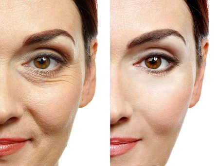 Photo pour Woman face before and after cosmetic procedure. Plastic surgery concept. - image libre de droit
