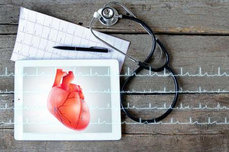 Foto de Tablet with stethoscope on wooden background. Heart on screen. Medicine and modern technology concept. - Imagen libre de derechos
