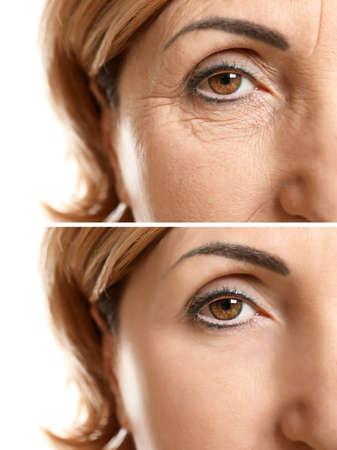 Photo pour Mature woman face before and after cosmetic procedure. Plastic surgery concept. - image libre de droit