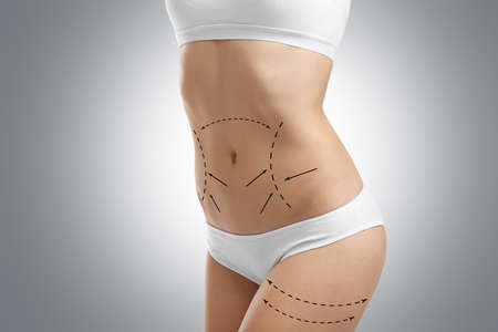 Photo pour Young female body with marks for plastic operation, gray background. Liposuction concept - image libre de droit