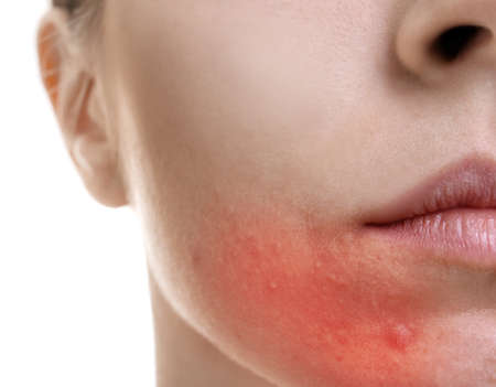 Photo pour Skin care concept. Young woman with acne, closeup - image libre de droit