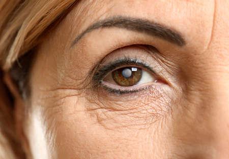 Foto de Cataract concept. Senior woman's eye, closeup - Imagen libre de derechos