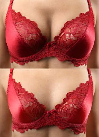 Photo pour Woman before and after breast size correction, closeup. Plastic surgery concept - image libre de droit