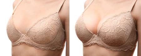 Photo pour Woman before and after breast size correction on white background. Plastic surgery concept - image libre de droit
