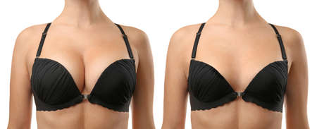 Photo pour Woman before and after breast size correction on white background. Plastic surgery concept - image libre de droit