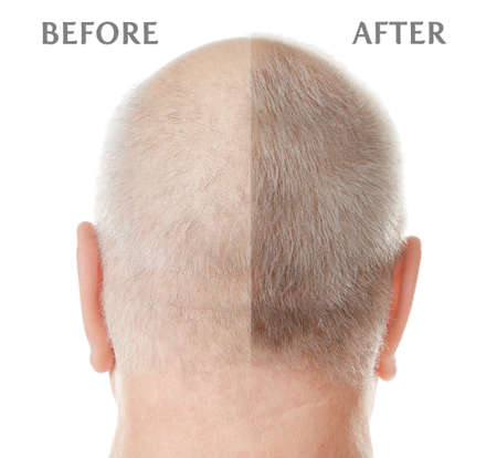 Photo for Senior man before and after hair loss treatment on white background - Royalty Free Image