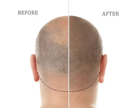 Photo for Man before and after hair loss treatment on white background - Royalty Free Image