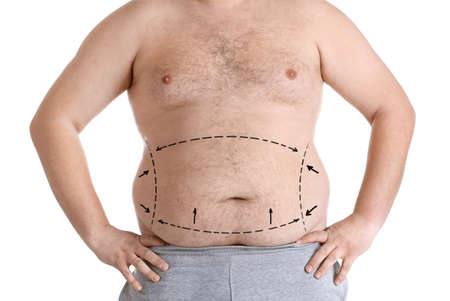 Photo for Weight loss concept. Man with marked fat problem areas on body, white background - Royalty Free Image