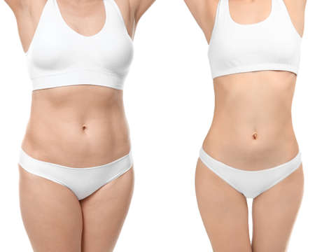 Photo pour Young woman before and after weight loss on white background - image libre de droit