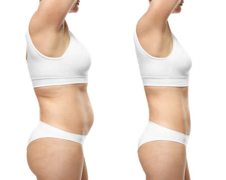 Foto de Young woman before and after weight loss on white background - Imagen libre de derechos