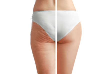 Photo pour Young woman body before and after anti cellulite treatment on white background - image libre de droit