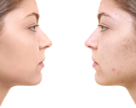 Photo pour Young woman before and after acne treatment on white background. Skin care concept - image libre de droit