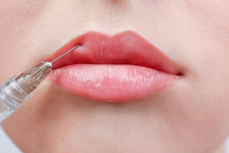 Photo pour Beautiful young woman receiving filler injection in lips, closeup - image libre de droit