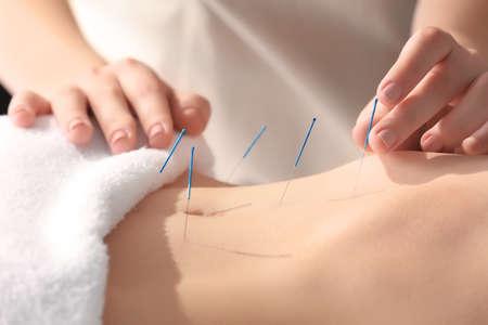 Photo pour Young woman undergoing acupuncture treatment, closeup - image libre de droit