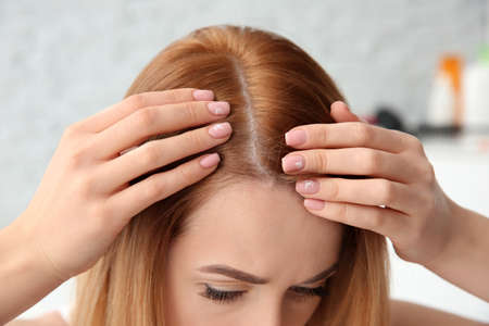 Photo pour Young woman with hair loss problem, closeup - image libre de droit