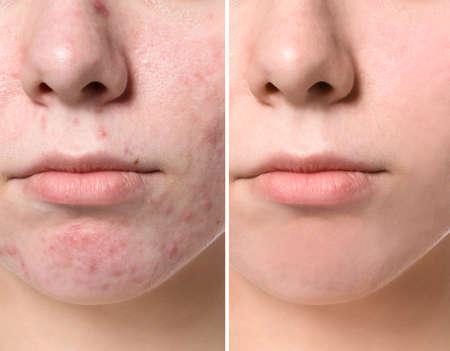 Photo pour Young woman before and after acne treatment, closeup. Skin care concept - image libre de droit