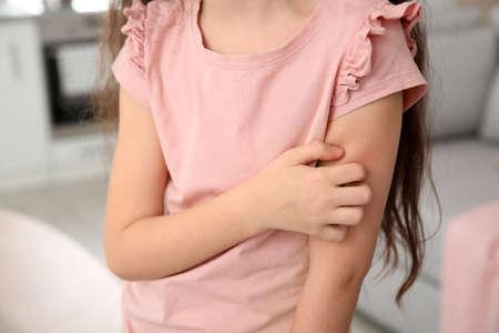 Photo pour Little girl scratching arm at home, closeup. Annoying itch - image libre de droit