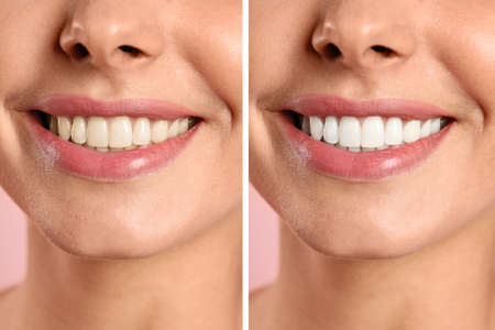 Foto de Smiling woman before and after teeth whitening procedure, closeup - Imagen libre de derechos
