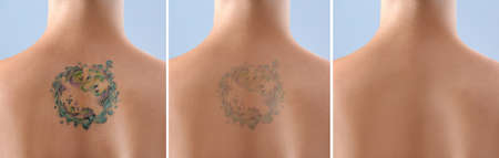 Photo pour Young woman before and after laser tattoo removal procedure, closeup - image libre de droit
