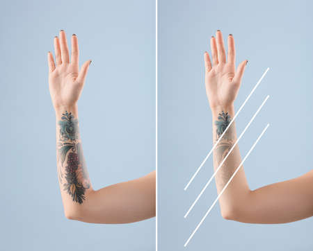 Photo pour Young woman before and after laser tattoo removal procedure on color background, closeup - image libre de droit