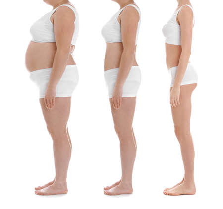 Foto de Overweight woman before and after weight loss on white background, closeup - Imagen libre de derechos